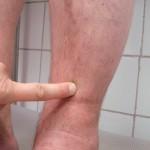 Test ucisku palcem — krok 1