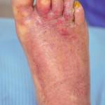 Zespół żółtych paznokci